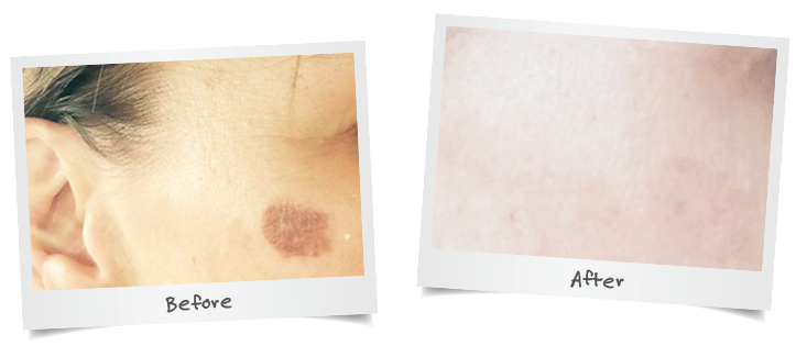 Pigmentation Removal
