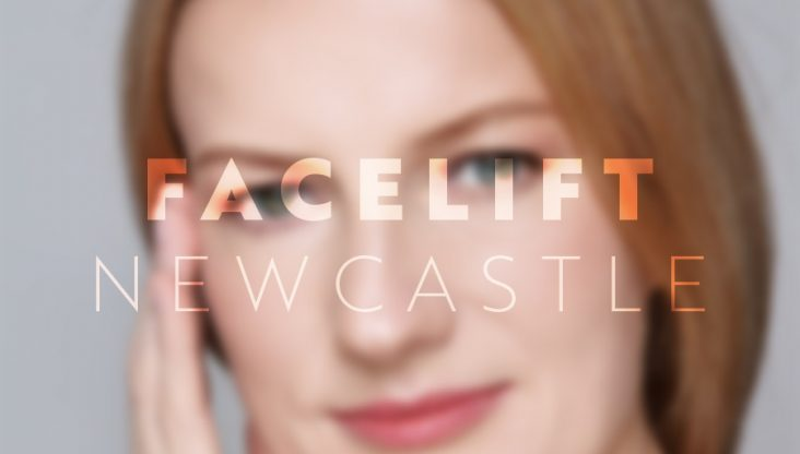 Facelift Newcastle