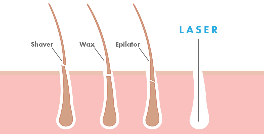 Hair Removal Effectiveness