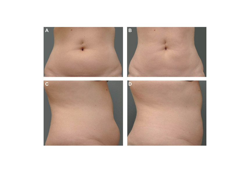 Cryolipolysis Research Results Before and after picture