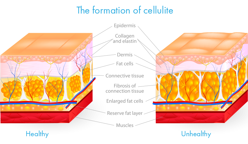 formation of cellulite