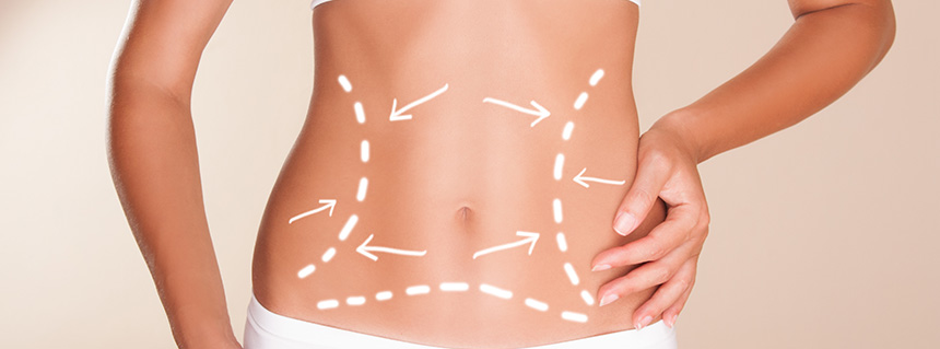 Cryolipolysis Manchester