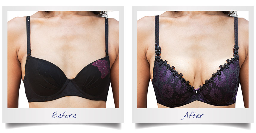 Breast Lift - Before and After