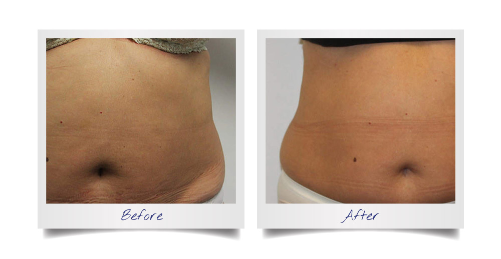 Tummy Tightening Before After 01