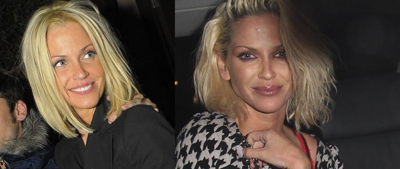Celebrity Lip Enhancement Before and After