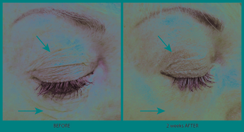 Plasma Eye Before & After