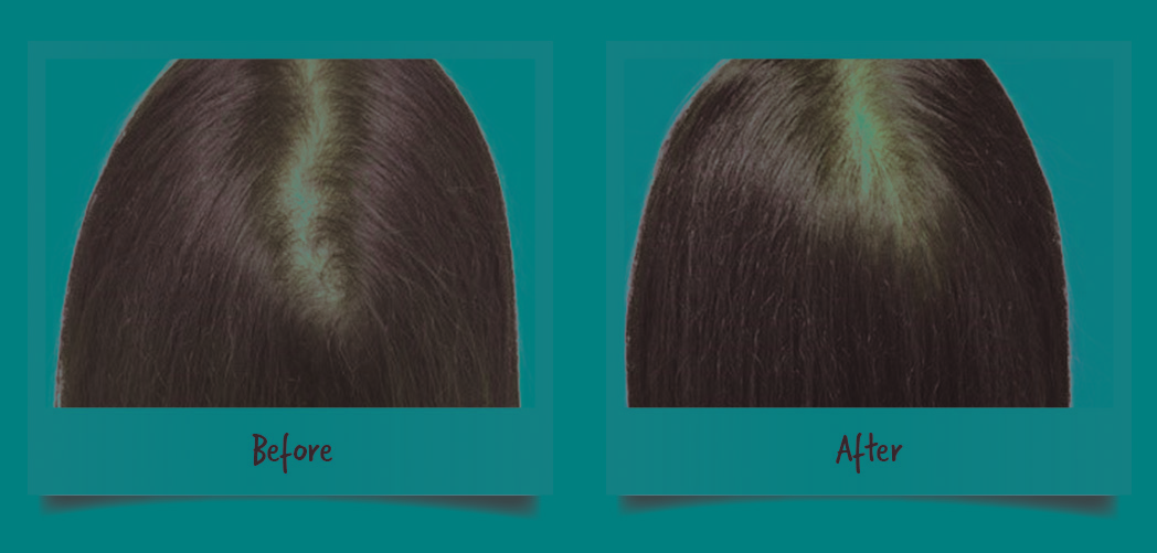 Women Before After Hair Rejuvenation